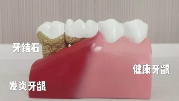 健康牙龈和发炎的牙龈