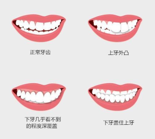 牙齿排列不整齐