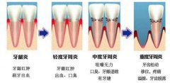 牙周炎治疗一个疗程多少钱?一个疗程有几次?