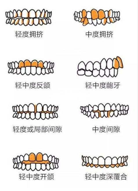 牙齿不齐的程度