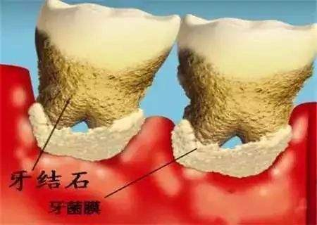 牙结石和牙菌斑