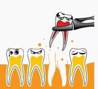 爱康健拔牙清理牙根多少钱