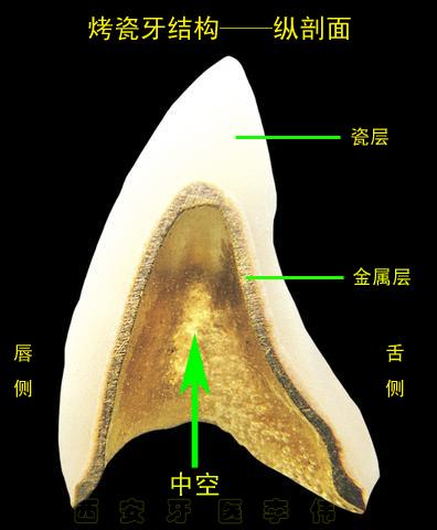 烤瓷牙结构