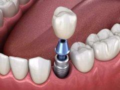 种植牙牙冠是怎么固定的?粘结还是螺丝拧上的?