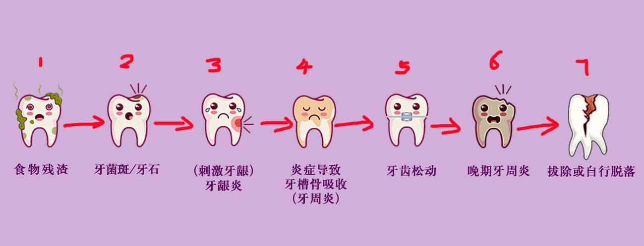 无论有没有好好刷牙,都需要洗牙