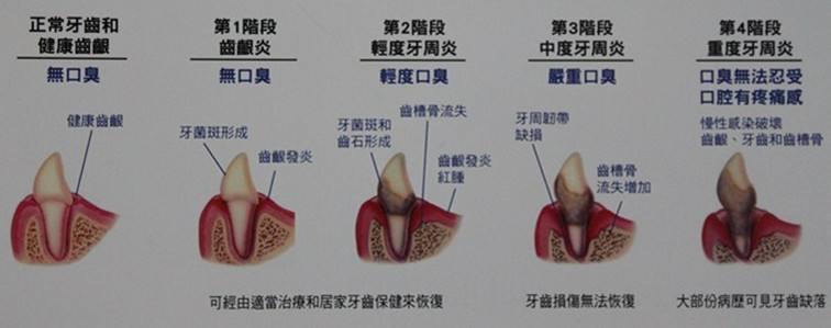 牙结石牙菌斑的发展