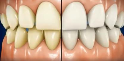牙齿发黄美白