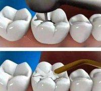 深圳儿童补牙根管治疗可以用少儿医保吗