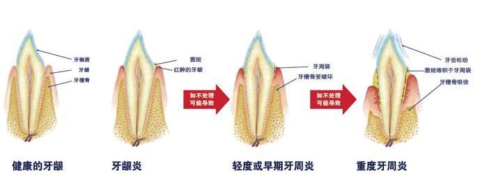 牙周炎的发展