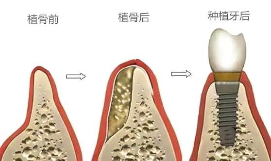 植骨和种植牙