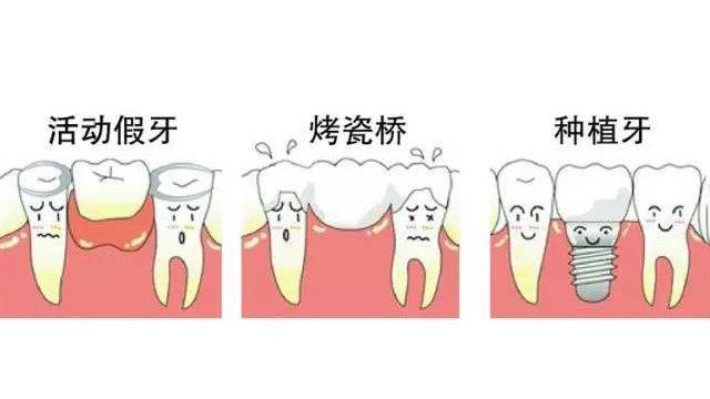 镶牙三种方式
