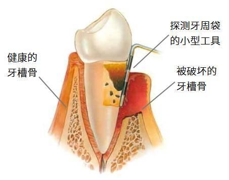 牙槽骨被破坏