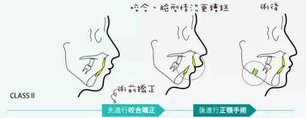 正畸正颌手术