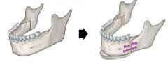 骨性的牙齿畸形带牙套纠正不了吗