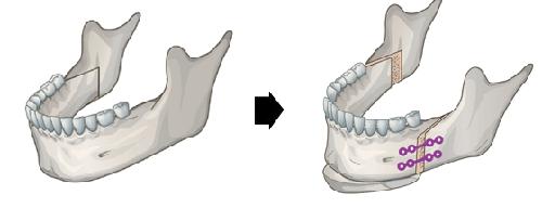 骨性牙齿畸形严重吗?正颌手术