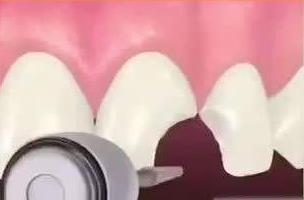 门牙美学修复补牙