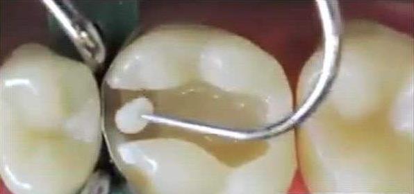 树脂补牙充填