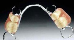 活动义齿基托选纯钛还是塑料的?