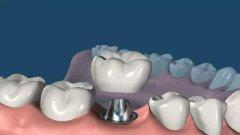 种植牙钛基台or全瓷基台,你pick哪种?