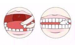 牙齿磕断了别着急,还能再接上!