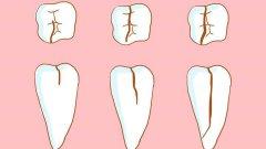 牙隐裂可以自愈吗?来听听医生的解释!