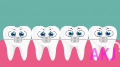 牙齿矫正有没有年龄限制?30岁能做吗?