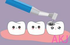 去牙科做了树脂补牙一般能用多少年