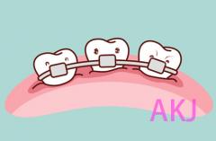 牙齿做矫正打骨钉痛不痛?