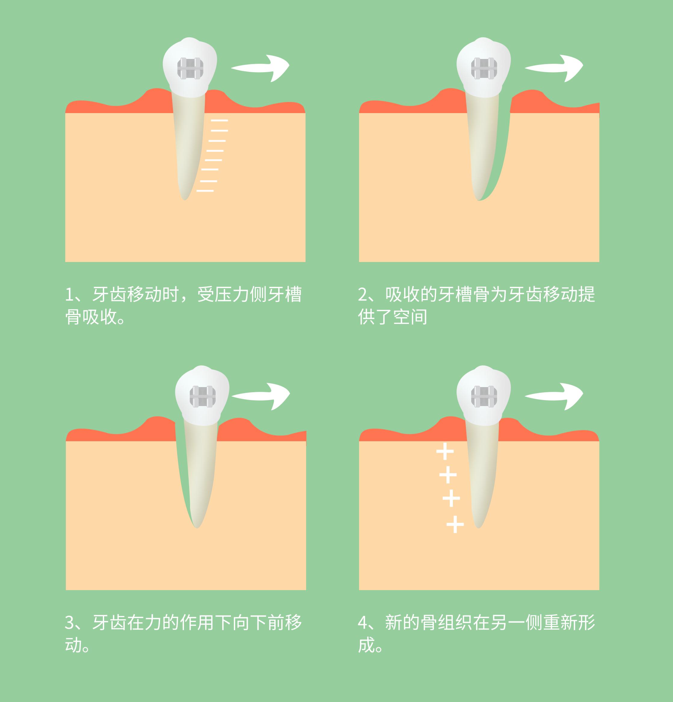 牙齿矫正原理