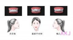 正颌手术是不是属于整容?多久能做完?