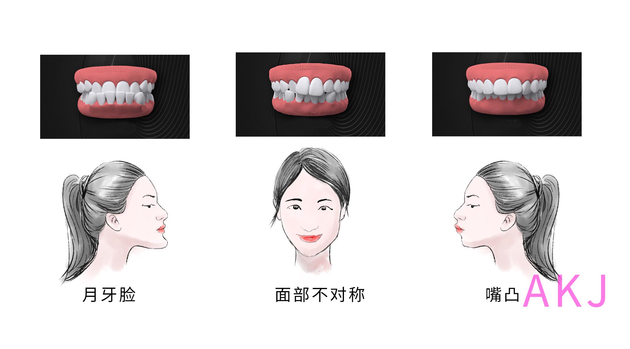 牙齿畸形影响面型