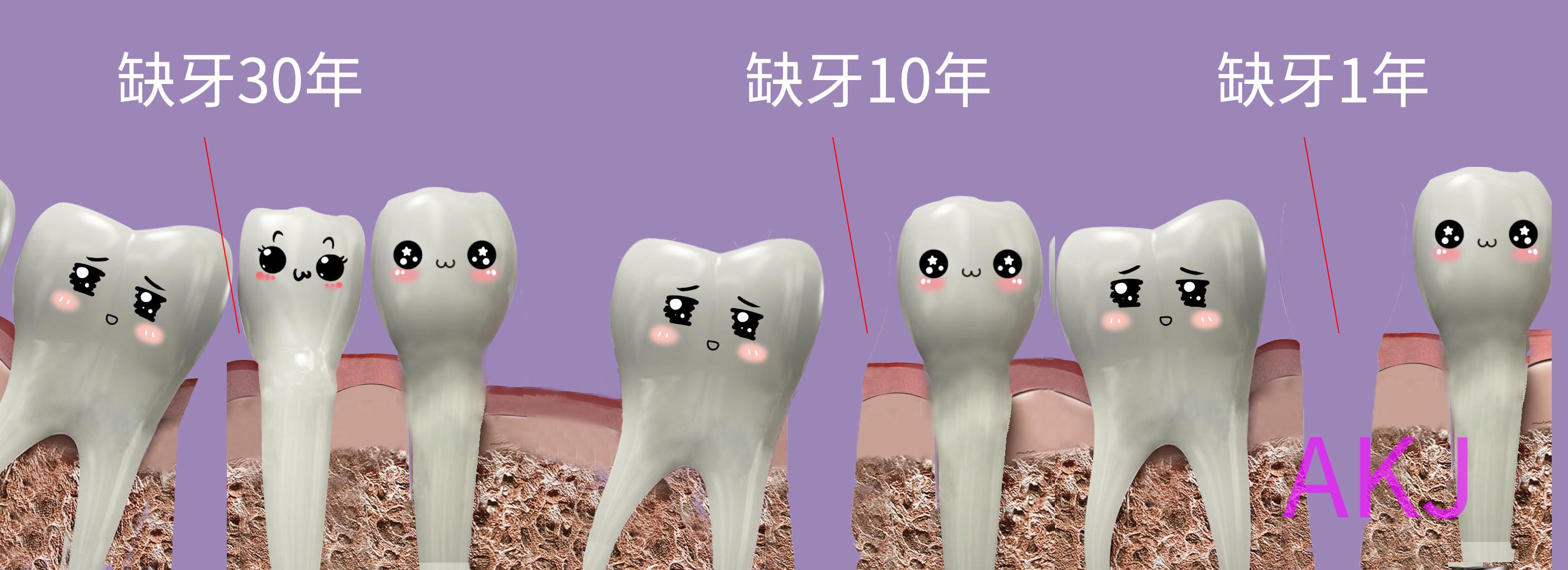 缺牙时间长危害大