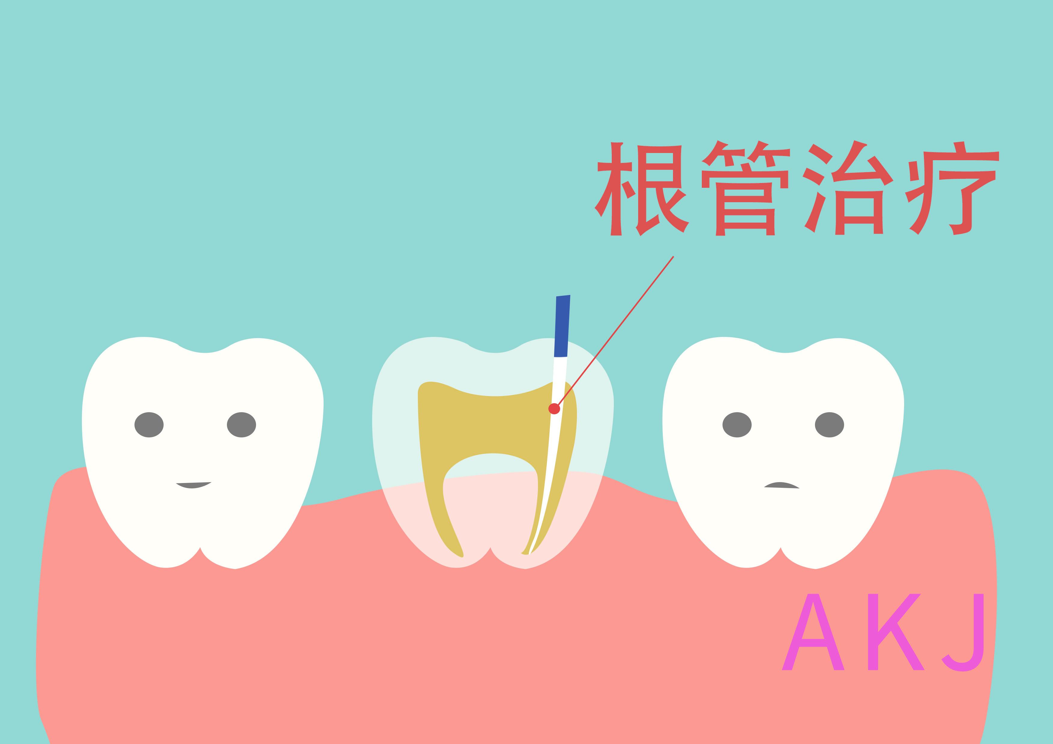 根管治疗补牙