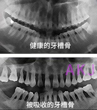 健康的牙槽骨和被吸收的牙槽骨