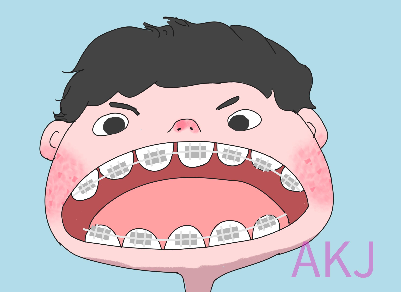 儿童牙齿矫治