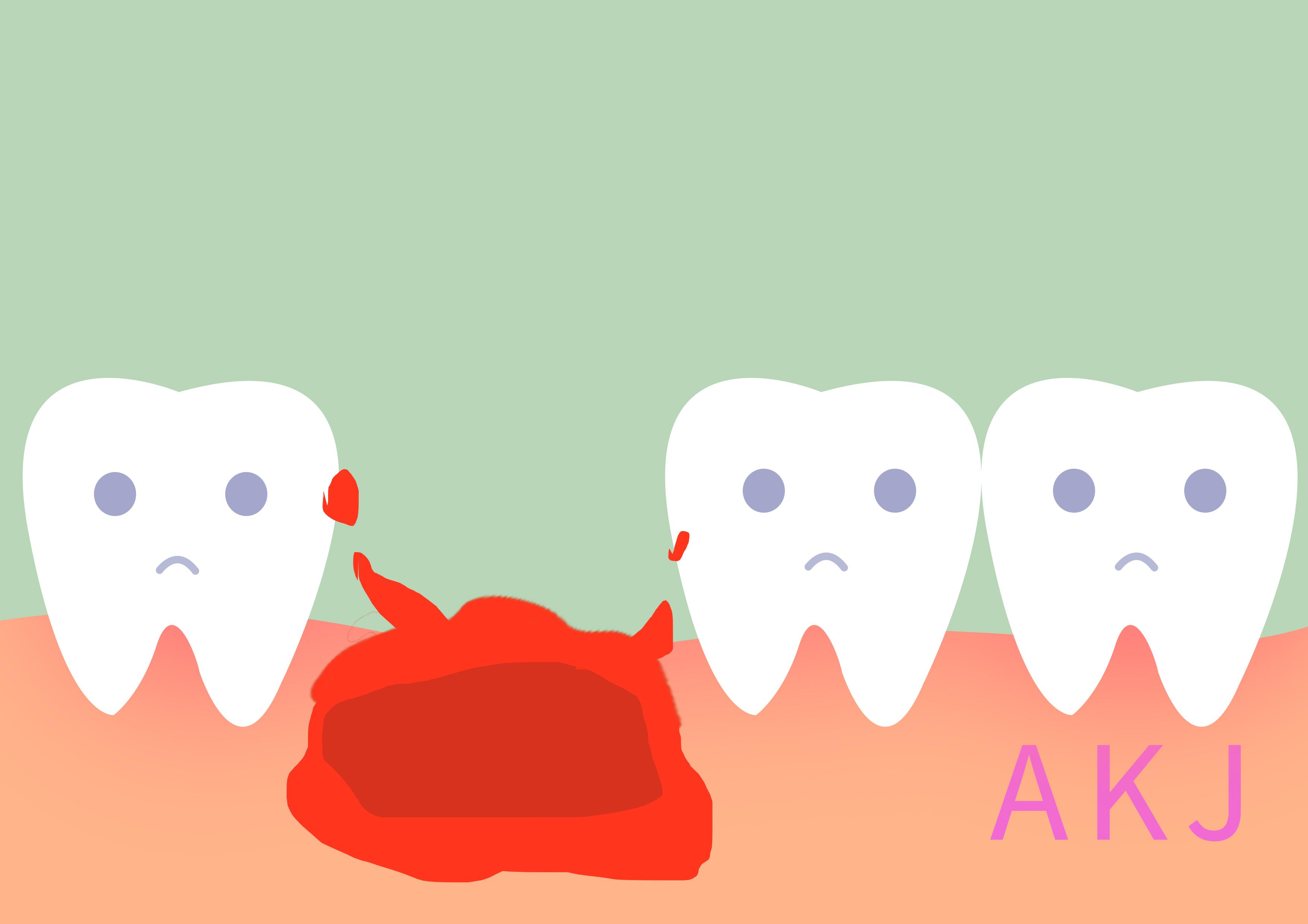拔牙后干槽症