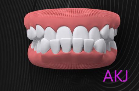 乳牙反颌(地包天)