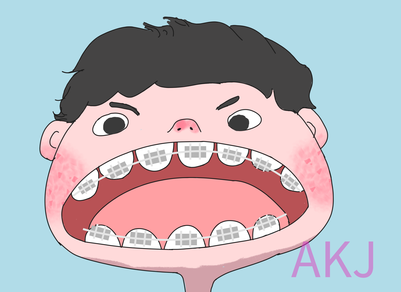 儿童牙齿不齐