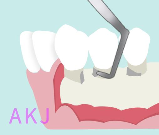 牙周翻瓣手术