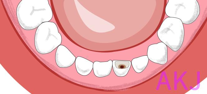 小孩子乳牙蛀牙