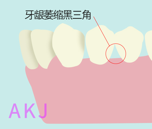 牙龈萎缩严重