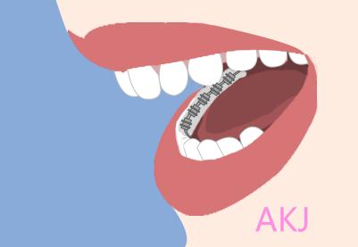 舌侧矫正示意图片