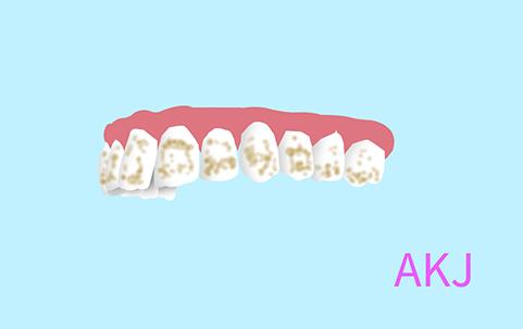 氟斑牙示意图片