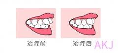 一分钟揭秘什么是牙齿矫正