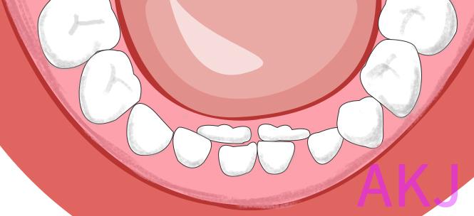 双排牙示意图片