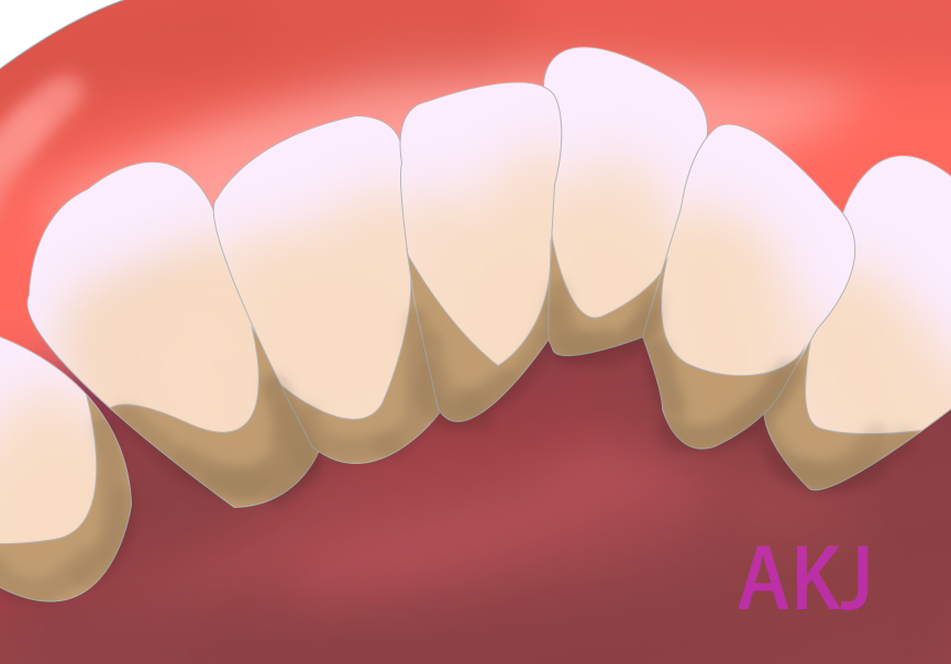 牙结石示意图片