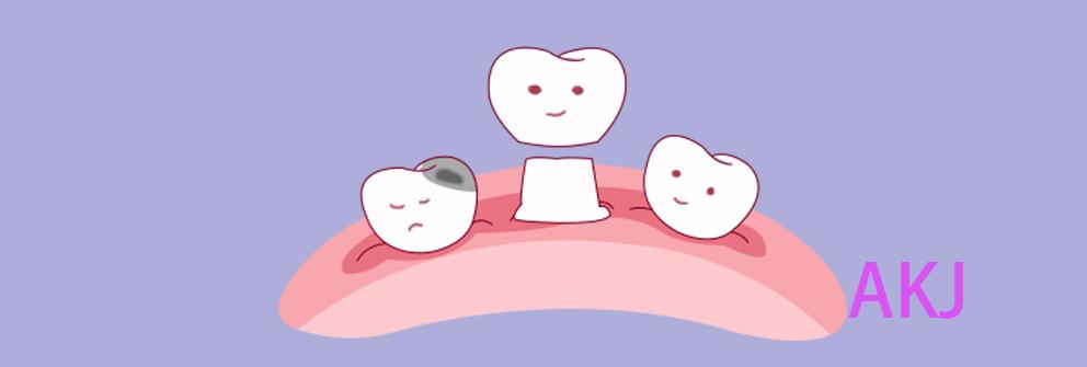 烤瓷牙冠示意图片