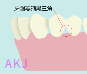 牙龈萎缩示意图片