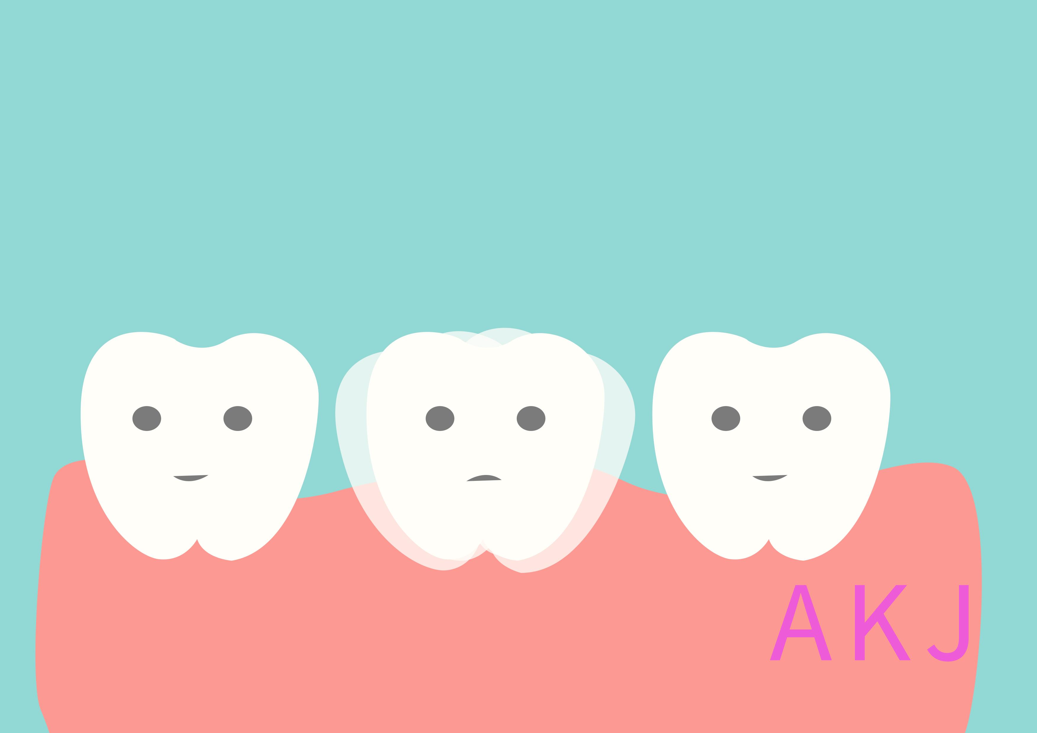牙齿松动示意情况