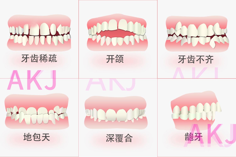 牙齿咬合关系示意图片